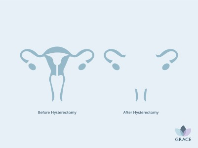 GR - Hysterectomy